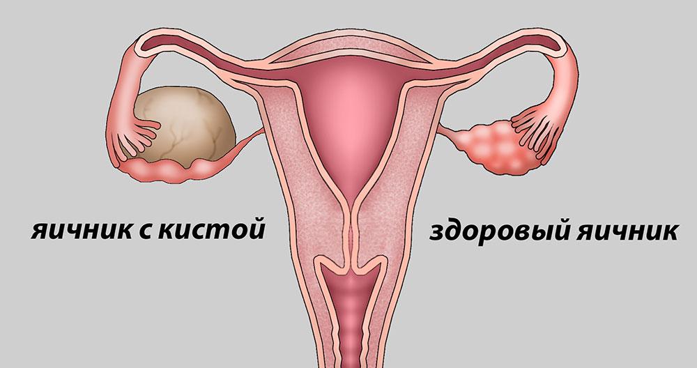 Киста в яичнике у женщин как лечить в домашних условиях