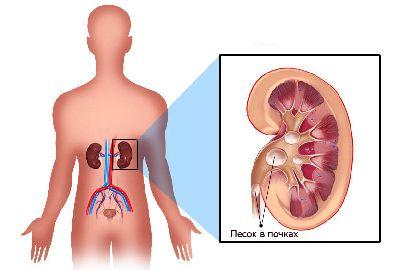 2. Классификация методов лечения мочекаменной болезни